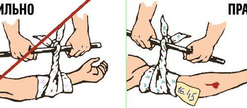 Оказание первой помощи пострадавшим при ДТП