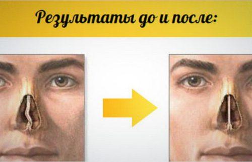 Масло для коррекции формы носа Organic
