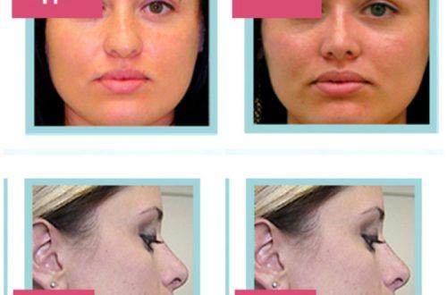 Ринокоррект прищепка для коррекции формы носа